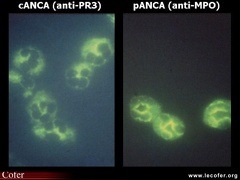 Anticorps anti-cytoplasme des polynucléaires, ANCA