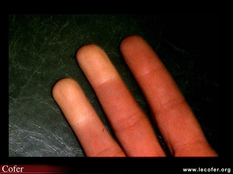 Lupus systémique, lupus érythémateux disséminé ...